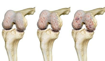 Porckopás, arthrosis formái és felismerése